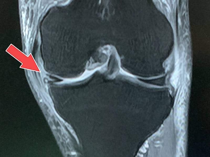 半月板損傷MRI